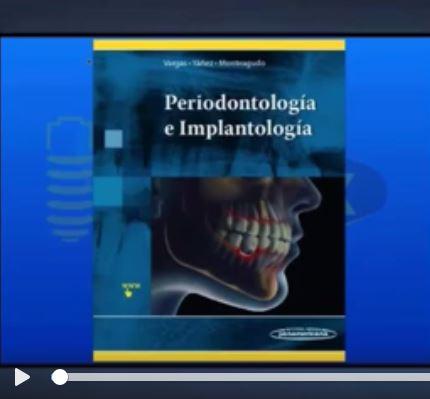 Vídeo Periodontología