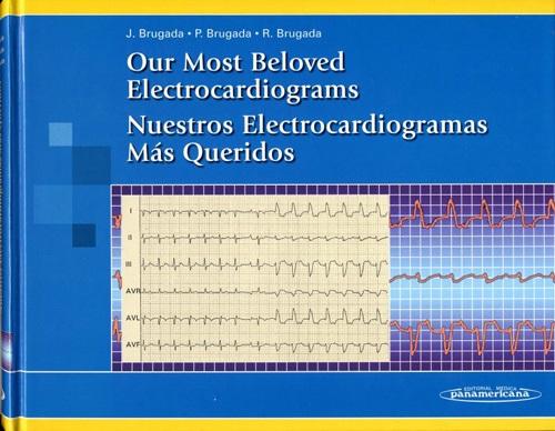 Our Most Beloved Electrocardiograms: Nuestros