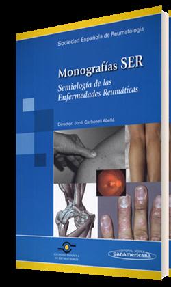 Monografías SER