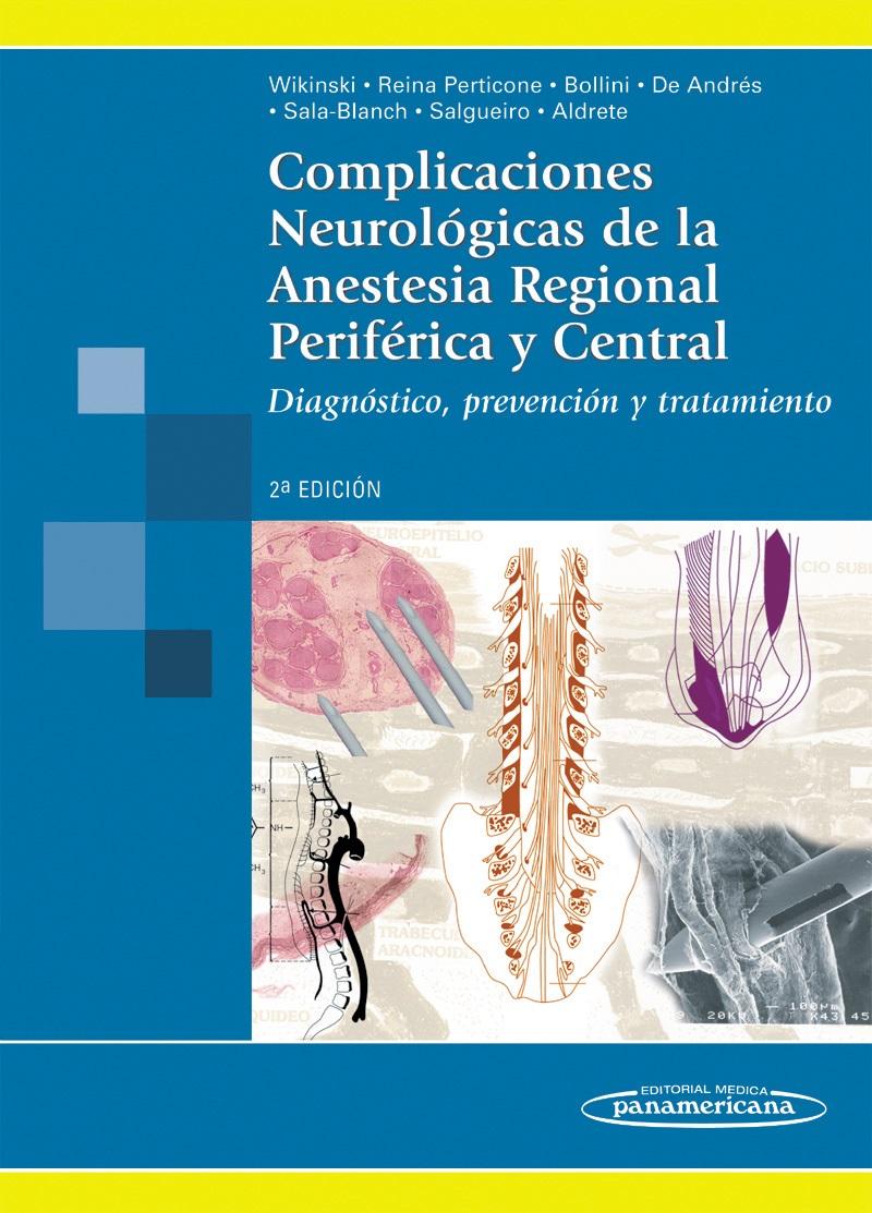 Complicaciones Neurológicas de la Anestesia Regional Periférica