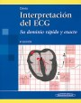 Interpretación del ECG