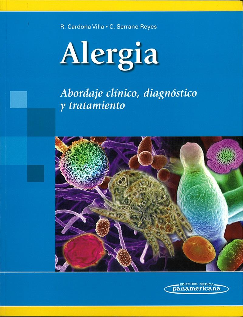 Rinitis Alergica Fisiopatologia Ebook