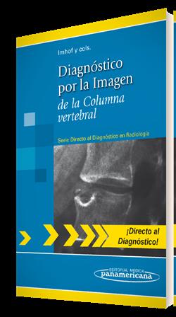 Diagnóstico por la Imagen de la Columna vertebral