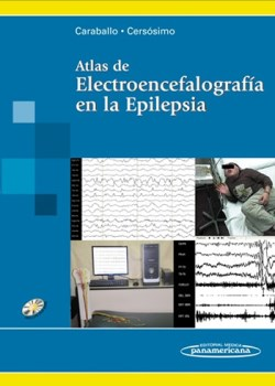 Atlas de Electroencefalografía en la Epilepsia