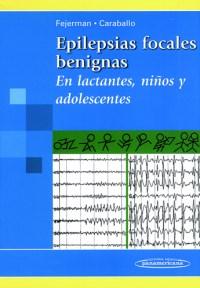 Epilepsias focales benignas