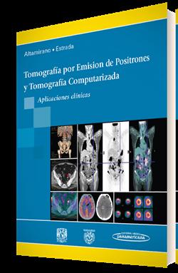 Tomografía por Emisión de Positrones y Tomografía Computarizada