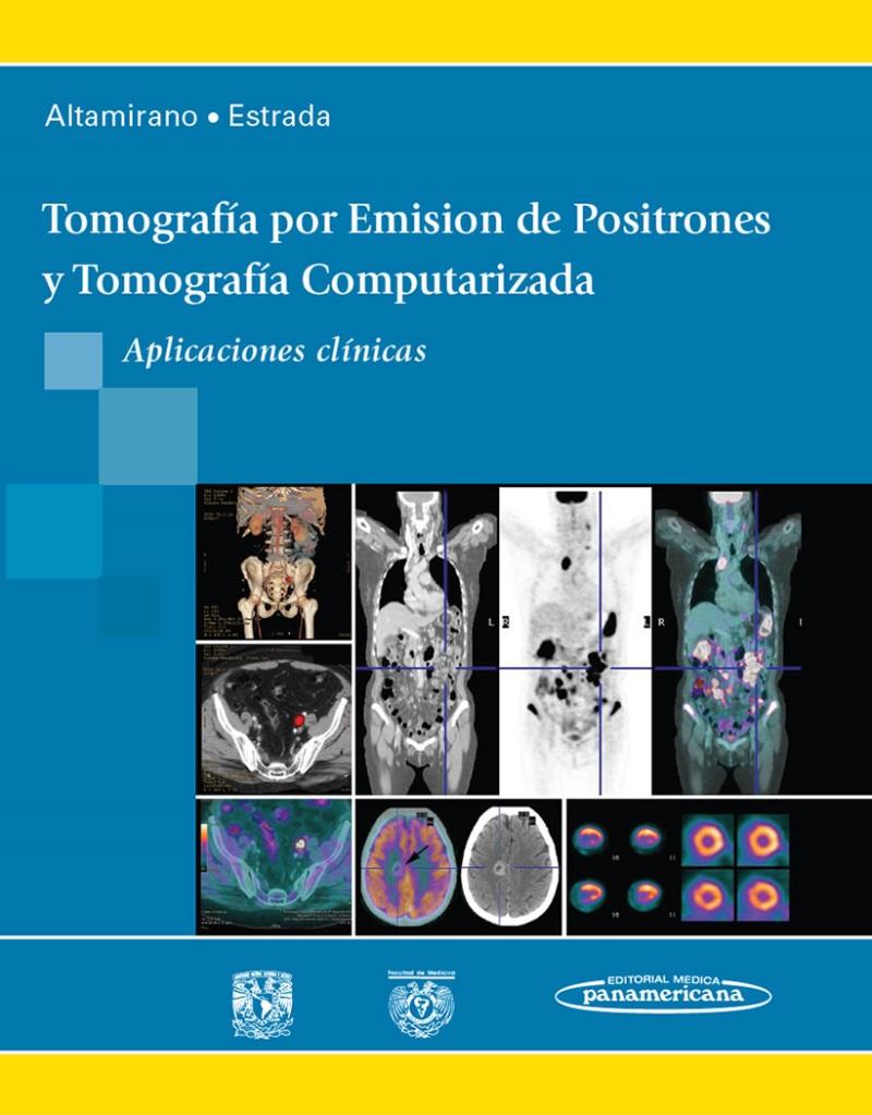 Tomografía Por Emisión De Positrones Y Tomografía ... @tataya.com.mx