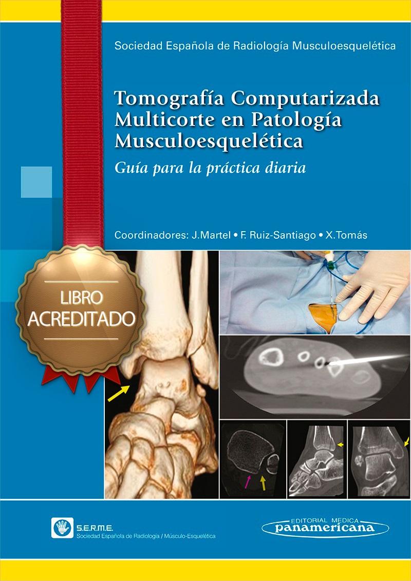 Curso de Tomografía Computarizada Multicorte en Patología Muscul