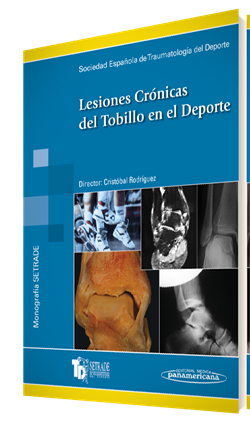 Lesiones Crónicas del Tobillo en el Deporte