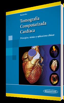 Tomografía Computarizada Cardíaca