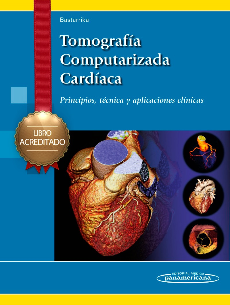 Curso Universitario de Tomografía Computarizada Cardíaca