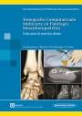 Tomografía Computarizada Multicorte en Patología Musculoesquelética
