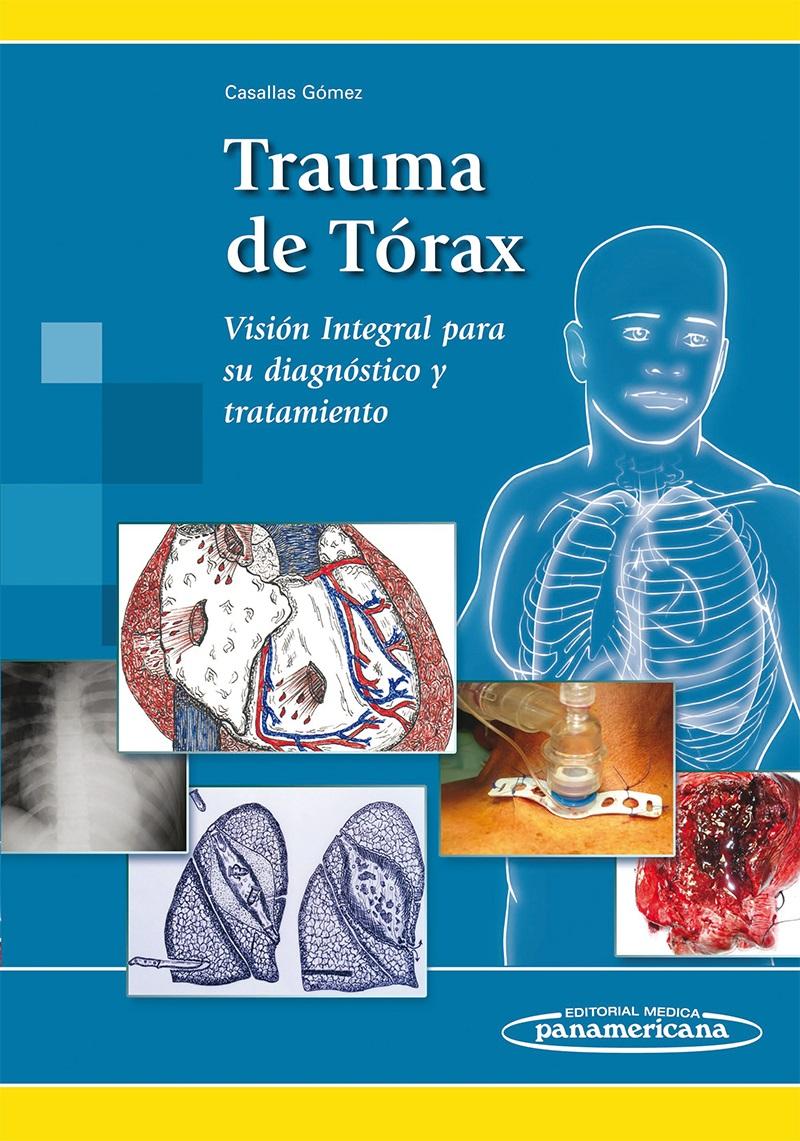 Trauma de Tórax: Visión integral para su diagnóstico y tratamien
