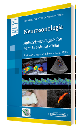Neurosonología (incluye versión digital)