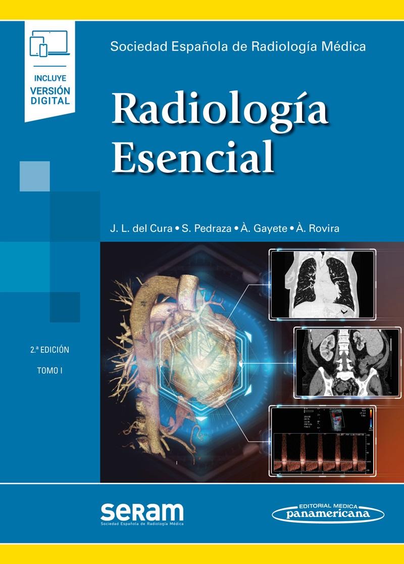 radiologia esencial seram