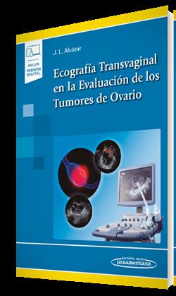 Ecografía Transvaginal en la Evaluación de los Tumores de Ovario (incluye versión digital)