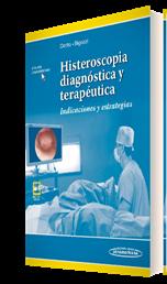 Histeroscopia diagnóstica y terapéutica (incluye versión digital)